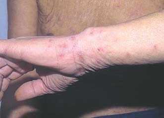 Как долго сохраняется зуд после лечения чесотки