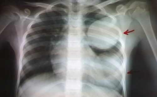 Клиническая картина аскаридозного поражения лёгких