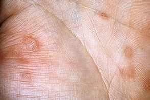 Папулезный сифилид