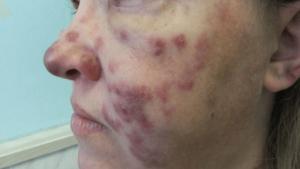 Поражения кожи при ВИЧ