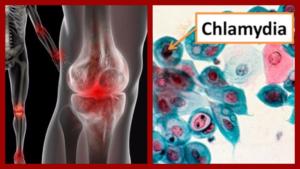 Хламидийный артрит