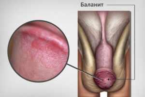 Болит член после секса