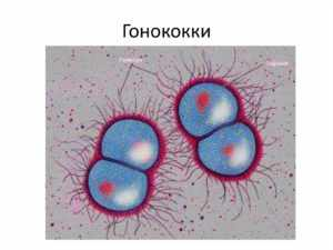 Инфекция Гонококковая