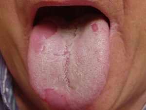 хламидиоз горла