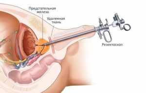 Трансуретральная эретрорезекция