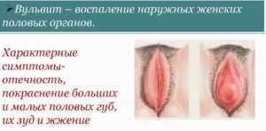 вульвит