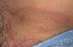 паховый дерматит