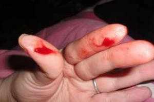 Кровь во время секса