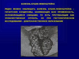 кондиломы Бушке Левенштейна