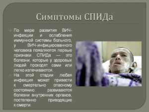 Как умирают от спида: развитие вич-инфекции, симптомы и причины смертности