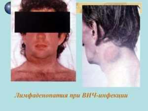 Причины, симптомы, места увеличения, воспаления и боли лимфоузлов при вич