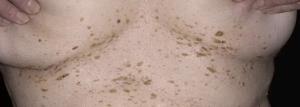 плоские папилломы фото