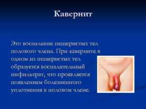 Что такое кавернит, причины его возникновения, симптомы и методы диагностики. Чем он опасен для мужчин и какие осложнения могут быть при несвоевременном лечении. Методы лечения: антибиотиками и физиопроцедурами. А также, эффективны ли народные средства в лечении кавернита.