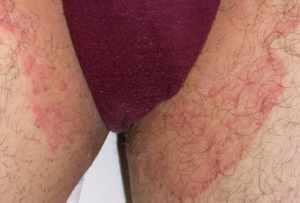 Паховый дерматит у женщин и мужчин