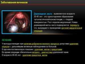 Болезни яичников
