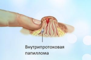 внутрипротоковая папиллома