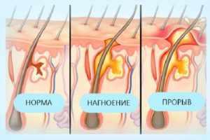 фурункул на лобковой части у женщин