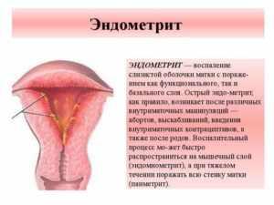 Эндометриту