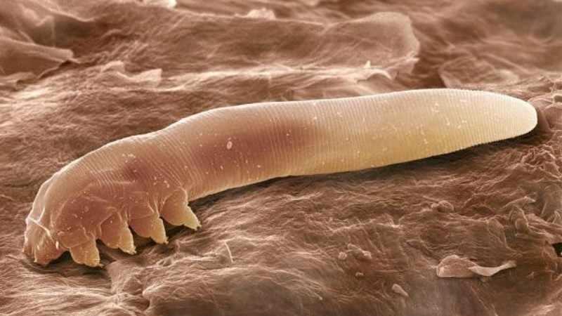 Чесоточный клещ под микроскопом