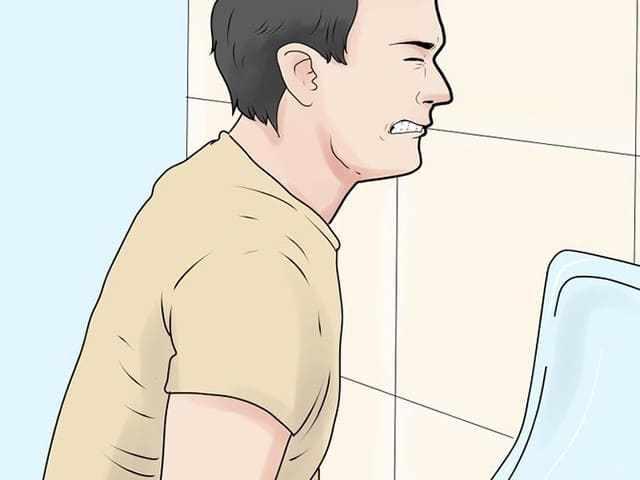 Боли при мочеиспускании после мазка у мужчины