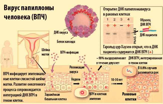 Инфицирование ВПЧ
