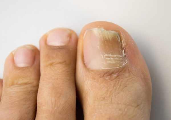 Онихомикоз - грибковое поражение ногтей