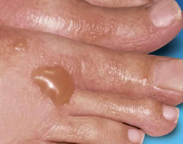 Буллезный контактный дерматит
