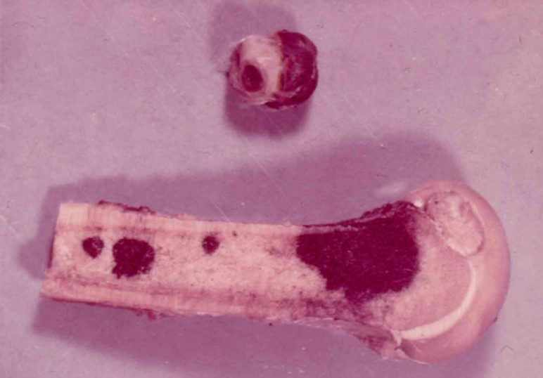Метастазы при меланоме в кости