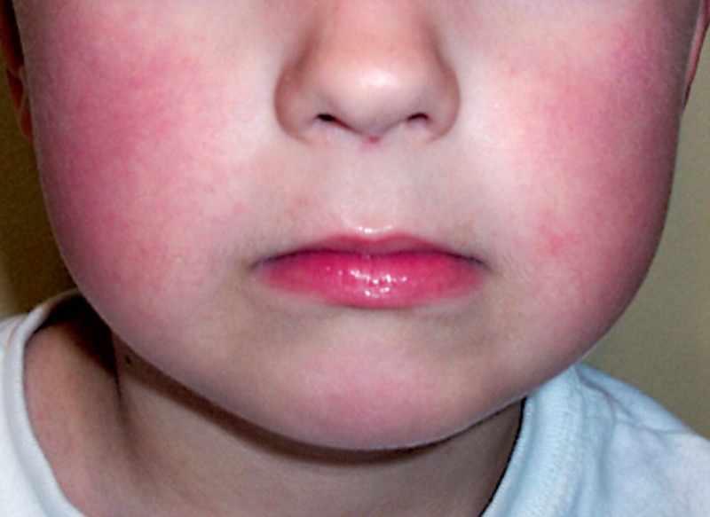 Сыпь при инфекционной эритеме