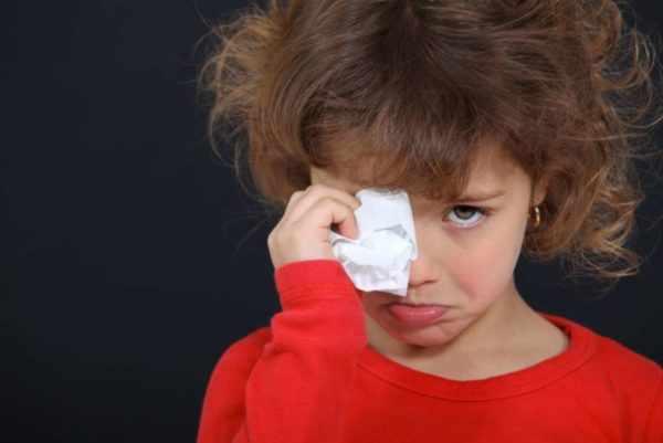 Опоясывающий лишай у ребенка