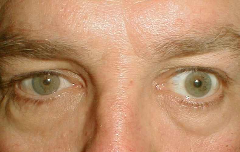 Желтизна под глазами