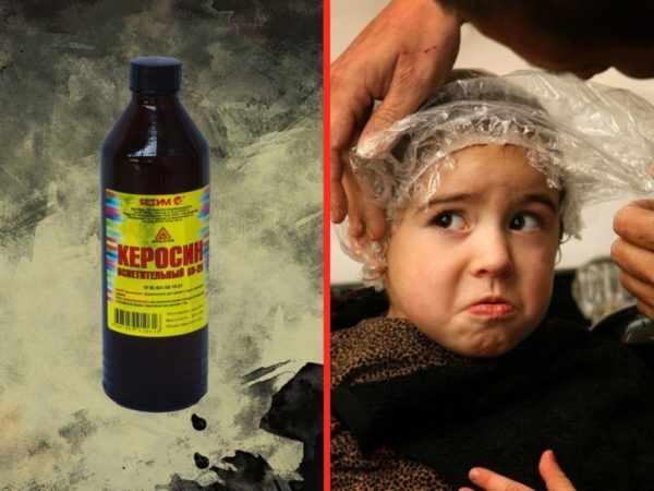 Самый простой рецепт борьбы со вшами с помощью керосина
