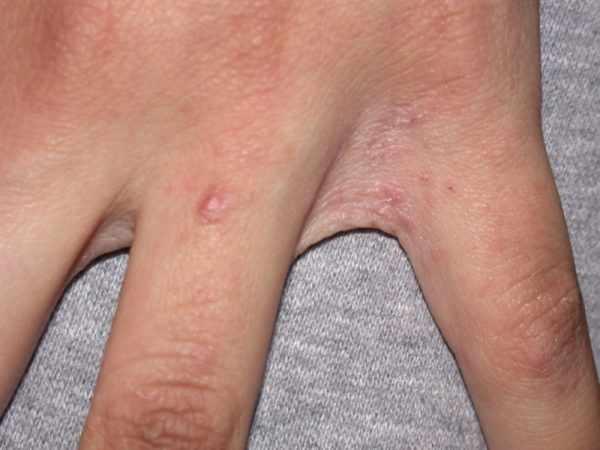 Чесотка как причина зуда на пальцах