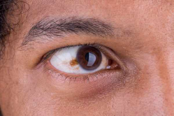 Меланома сосудистой оболочки глаза