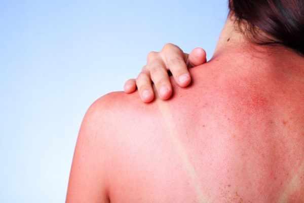Солнечный ожог спины