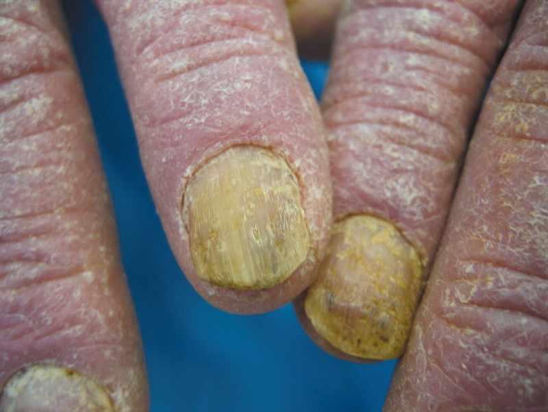 Псориаз поражает ногти и кожу