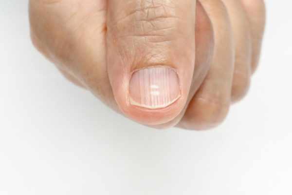 Борозды на ногтевой пластине