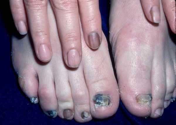 Грибок ногтей рук и ног
