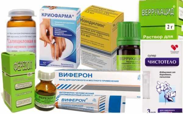Обзор аптечных средств от папиллом