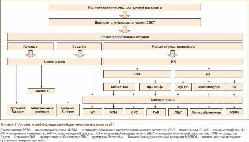 Дифференциальная диагностика васкулита