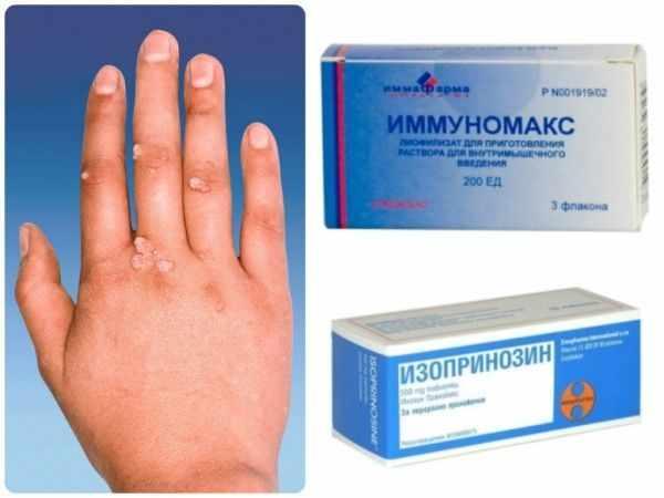 Какими аптечными препаратами можно вылечить бородавки