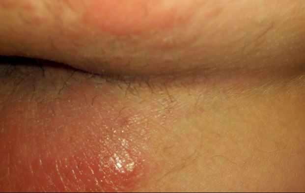 Дерматит у ануса и на ягодицах