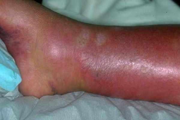 Рожистое воспаление ноги