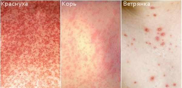 Виды сыпи при заболеваниях