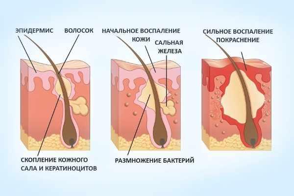 Стадии развития фурункула