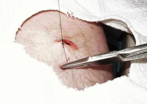 Хирургический метод удаления