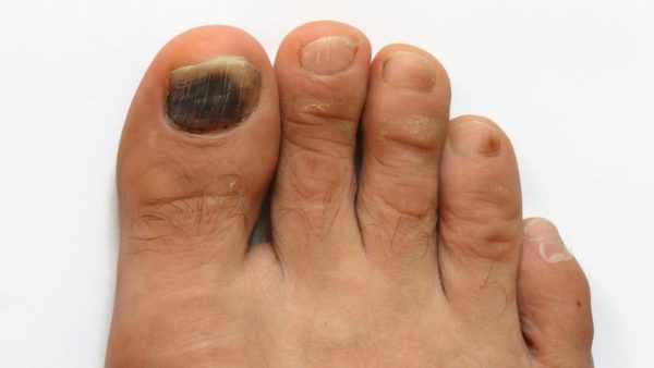 Черное пятно на ногте большого пальца ноги