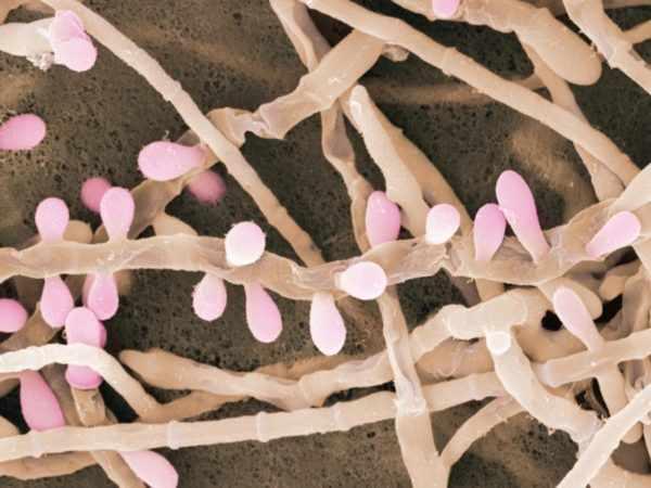 Trichophyton rubrum
