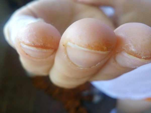 Трещина на пальце руки