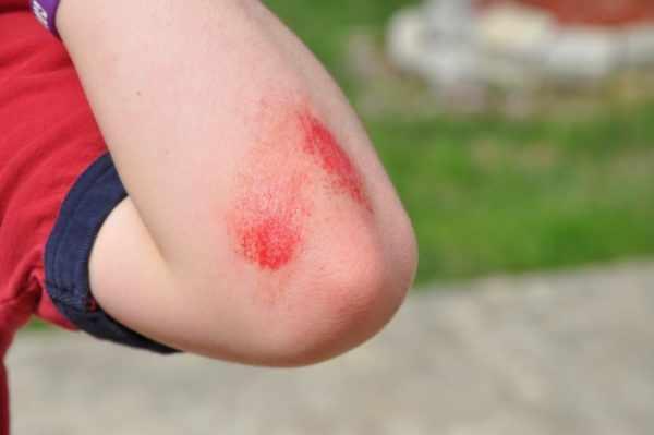 Травмирование кожи